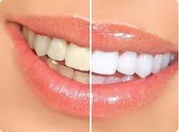 biały uśmiech 1